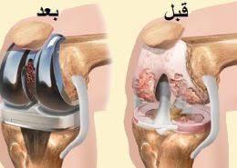 جراحی مفصل